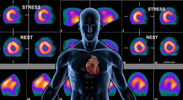 Nuclear Cardiology Technology Study Guide
